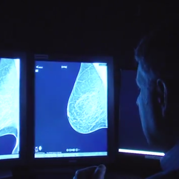 Emory offers state-of-the-art 3D mammography